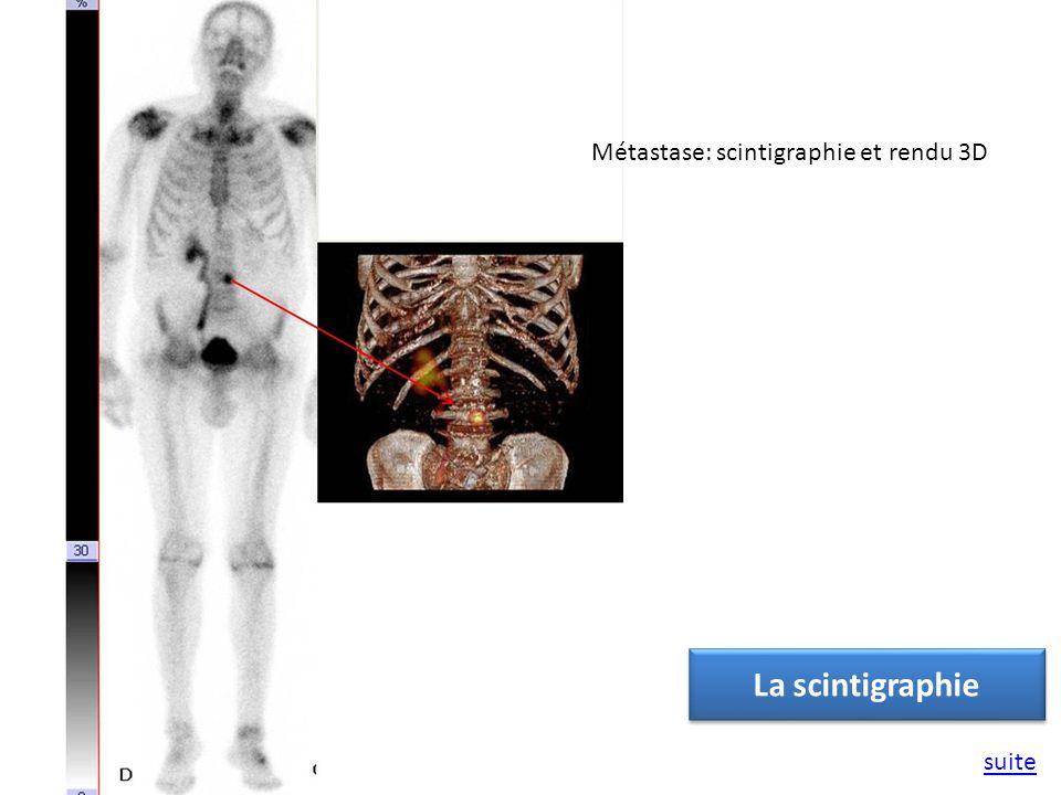 Métastase: scintigraphie et rendu 3D