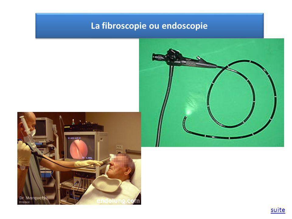 La fibroscopie ou endoscopie