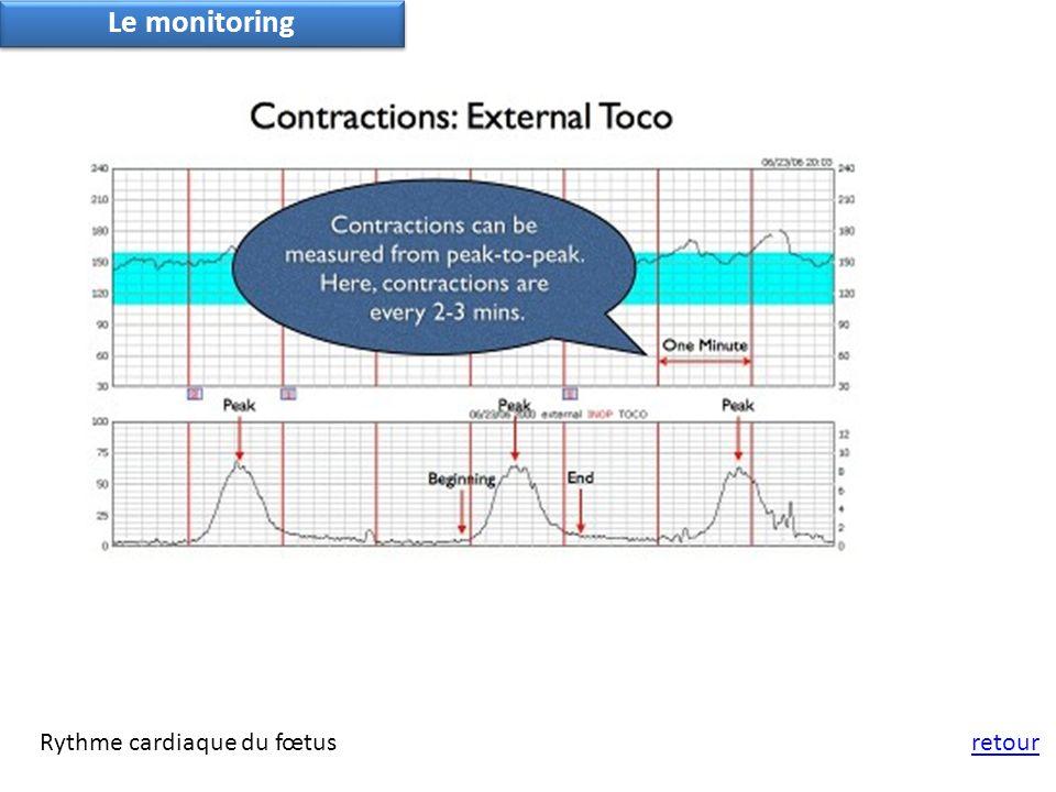 Le monitoring Rythme cardiaque du fœtus retour