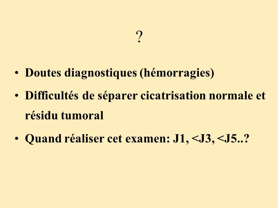 Doutes diagnostiques (hémorragies)