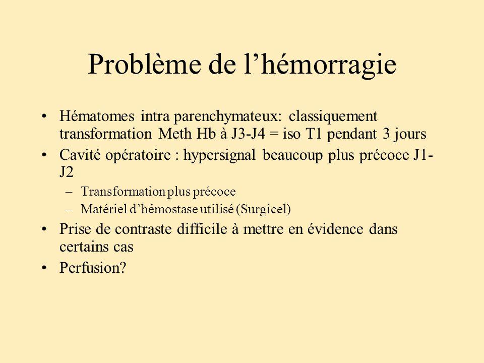 Problème de l'hémorragie