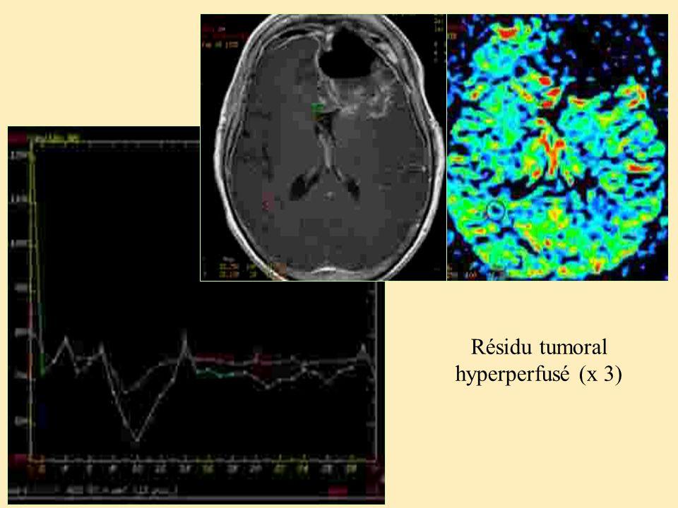 Résidu tumoral hyperperfusé (x 3)
