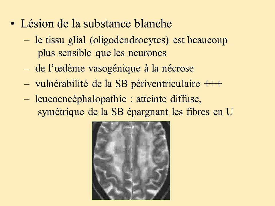 Lésion de la substance blanche