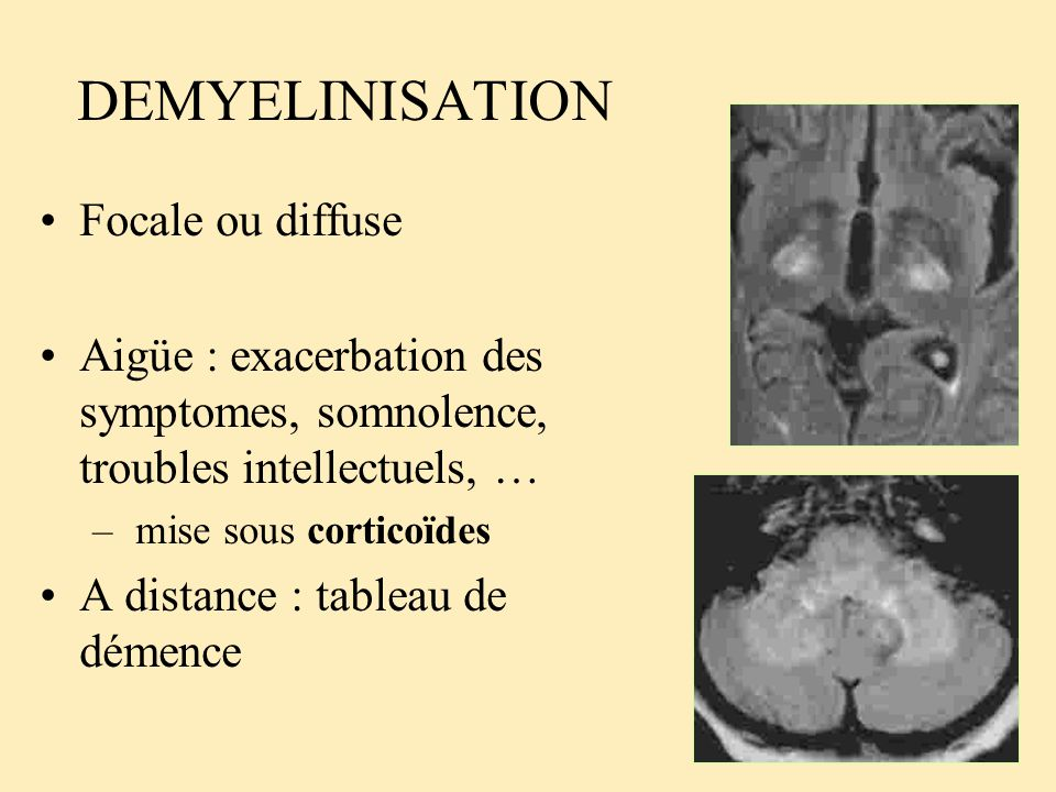 DEMYELINISATION Focale ou diffuse