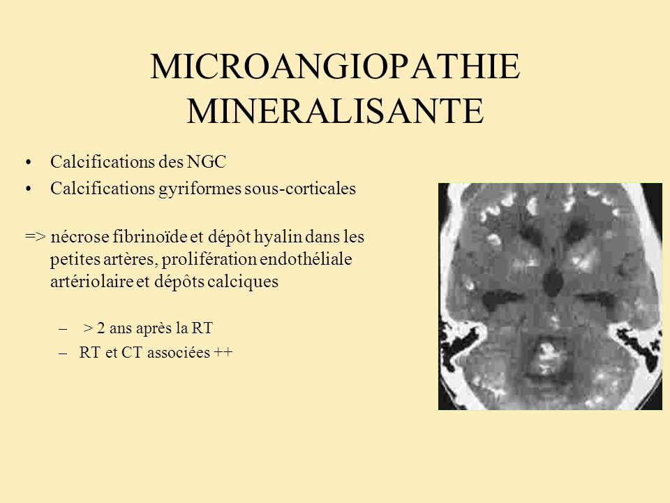 MICROANGIOPATHIE MINERALISANTE
