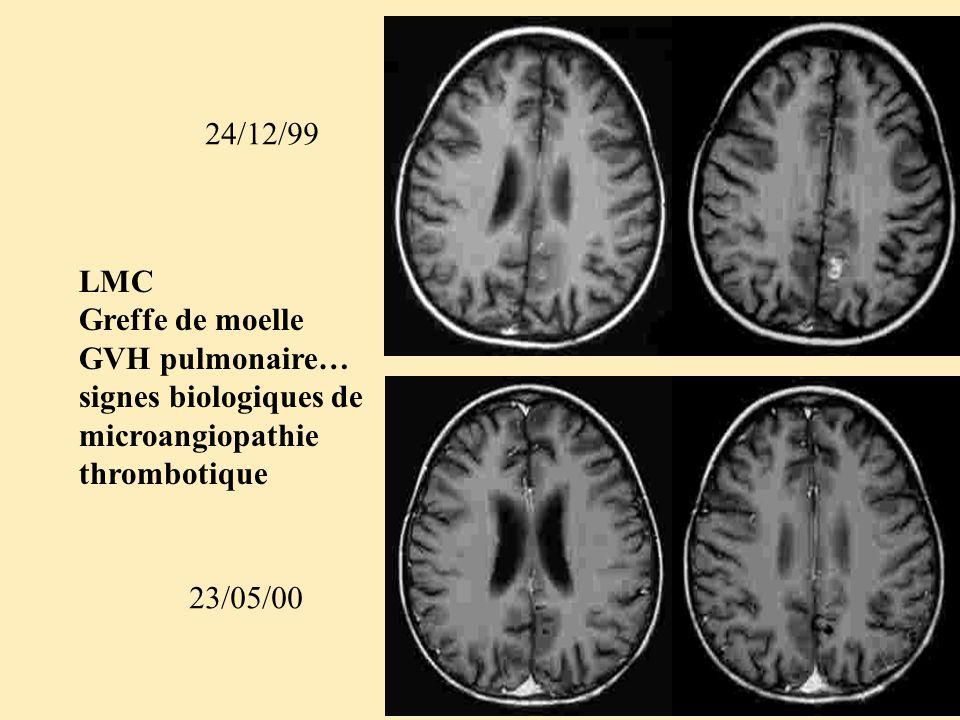 24/12/99 LMC. Greffe de moelle. GVH pulmonaire… signes biologiques de. microangiopathie thrombotique.