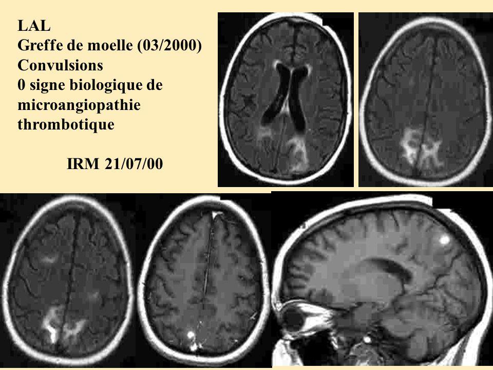 LAL Greffe de moelle (03/2000) Convulsions. 0 signe biologique de microangiopathie thrombotique.