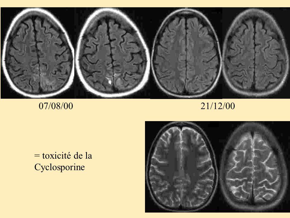 07/08/00 21/12/00 = toxicité de la Cyclosporine