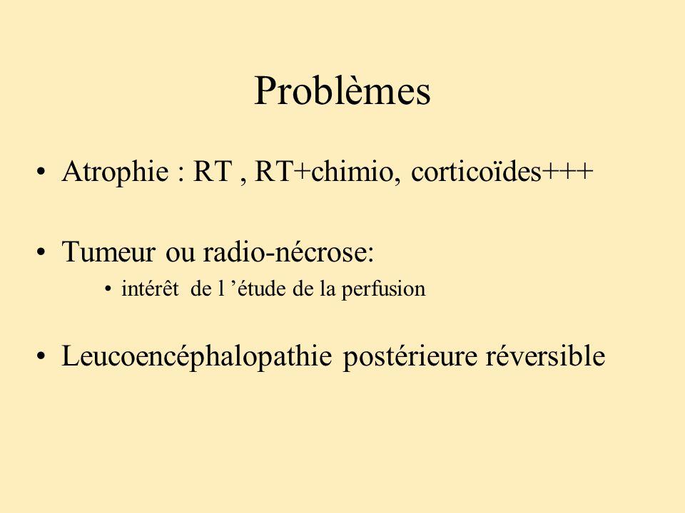 Problèmes Atrophie : RT , RT+chimio, corticoïdes+++