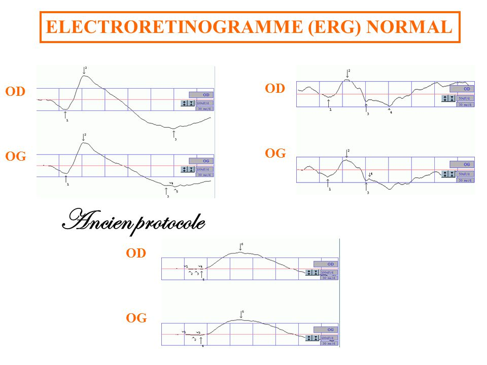 Ancien protocole ELECTRORETINOGRAMME (ERG) NORMAL Flashes « blancs »