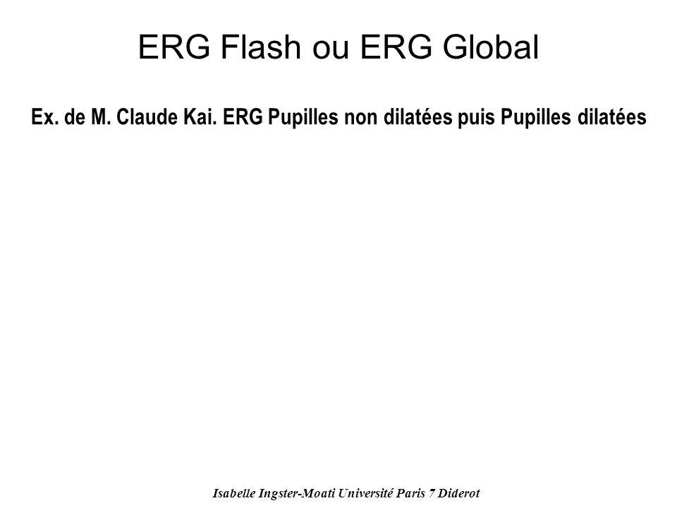 ERG Flash ou ERG Global Ex. de M. Claude Kai. ERG Pupilles non dilatées puis Pupilles dilatées.
