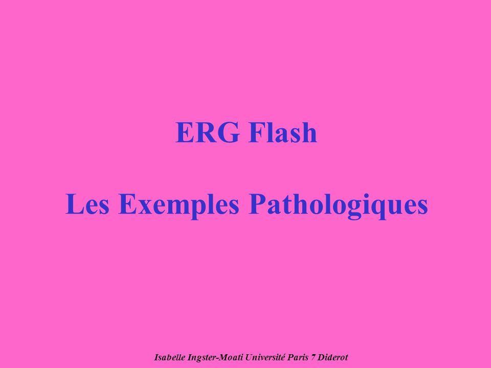 ERG Flash Les Exemples Pathologiques