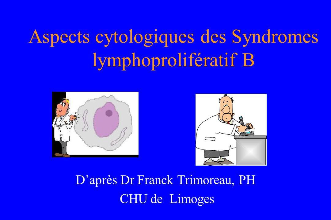 Aspects cytologiques des Syndromes lymphoprolifératif B