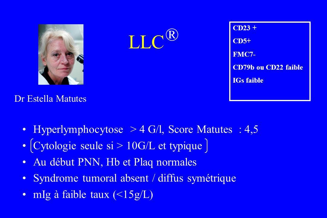 LLC ® Hyperlymphocytose > 4 G/l, Score Matutes : 4,5