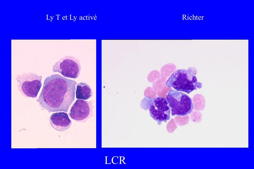 Ly T et Ly activé Richter LCR