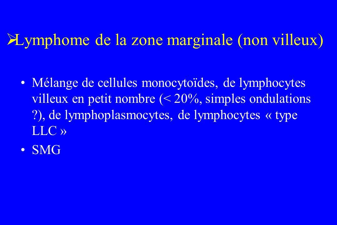 Lymphome de la zone marginale (non villeux)