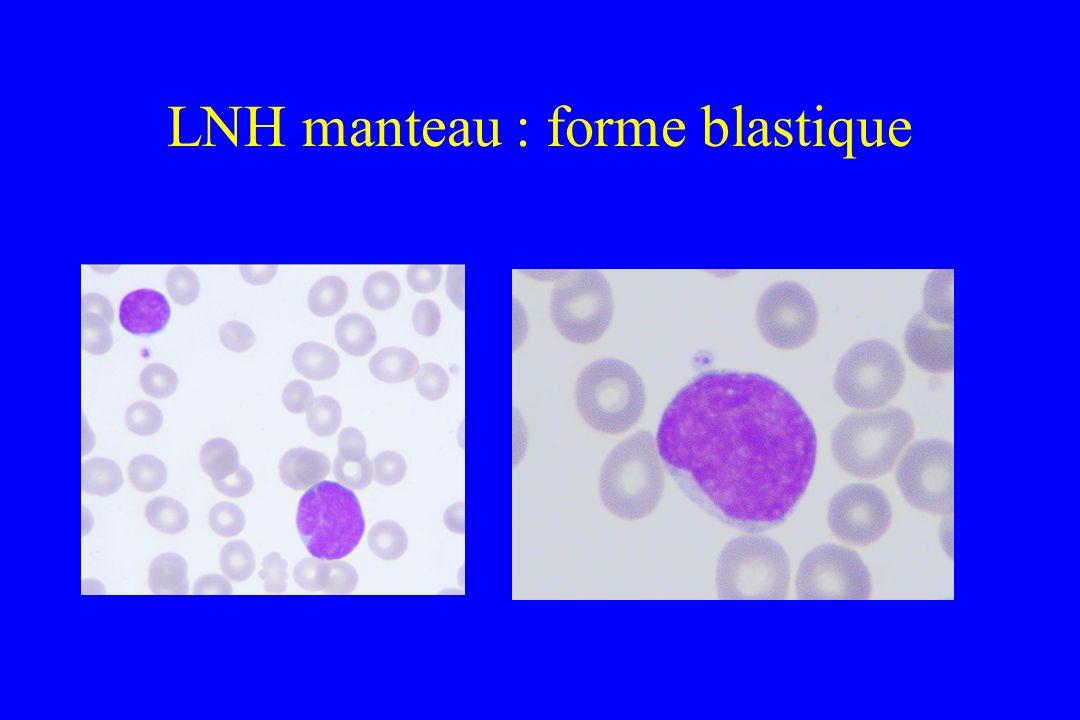 LNH manteau : forme blastique