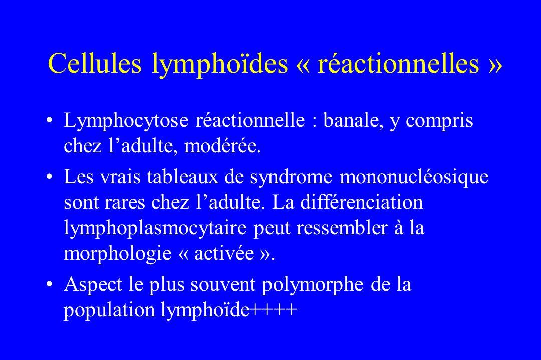 Cellules lymphoïdes « réactionnelles »
