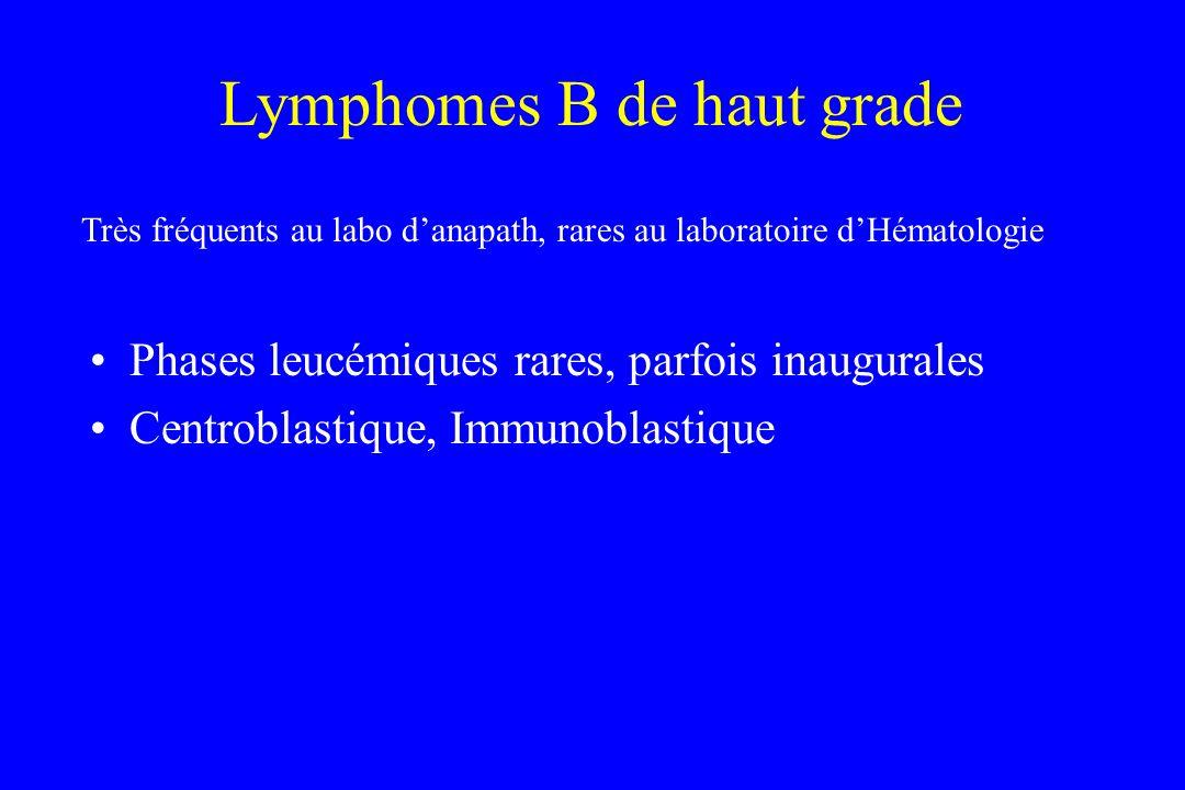 Lymphomes B de haut grade