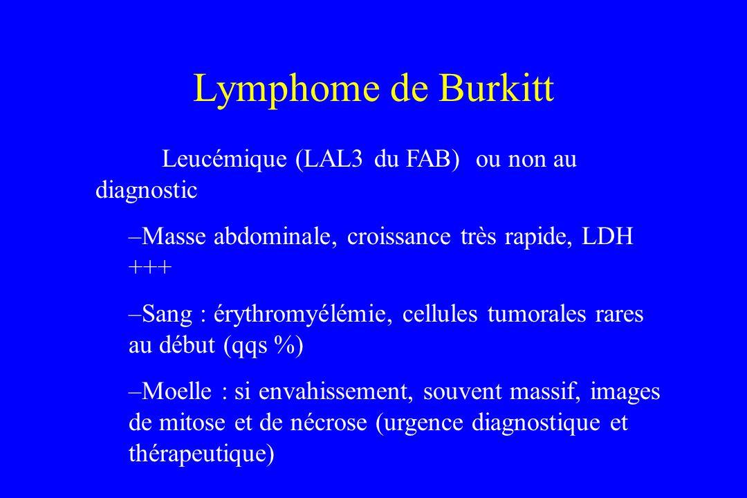 Lymphome de Burkitt Leucémique (LAL3 du FAB) ou non au diagnostic