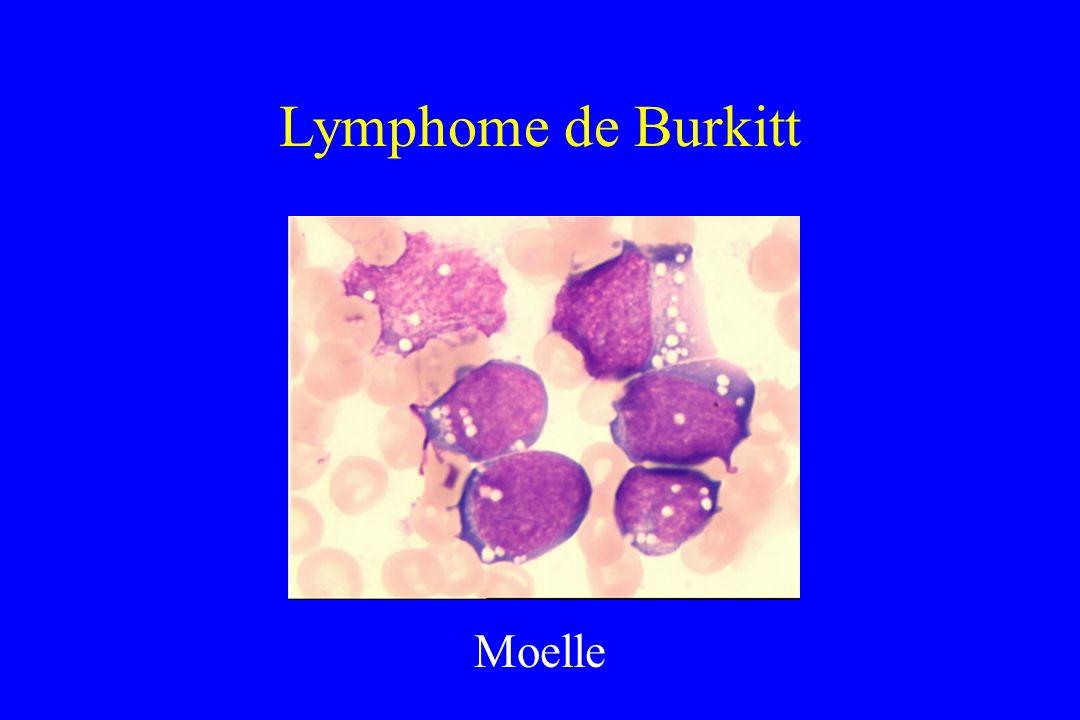 Lymphome de Burkitt Moelle