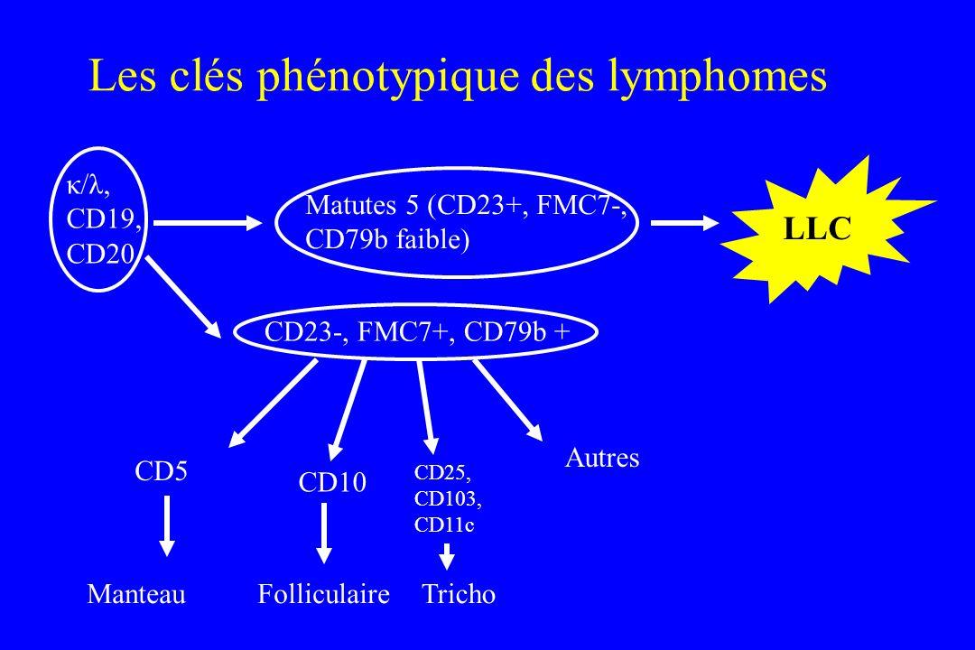 Les clés phénotypique des lymphomes