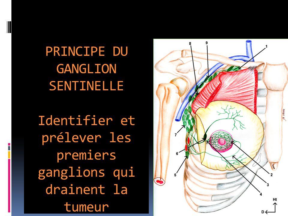 PRINCIPE DU GANGLION SENTINELLE Identifier et prélever les premiers ganglions qui drainent la tumeur
