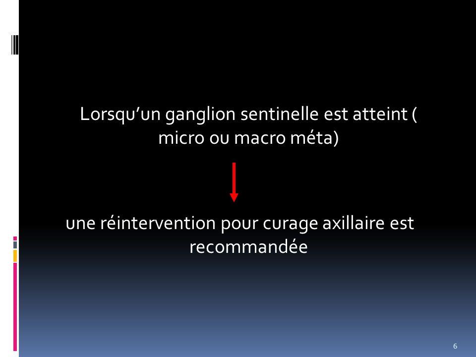 Lorsqu'un ganglion sentinelle est atteint ( micro ou macro méta) une réintervention pour curage axillaire est recommandée