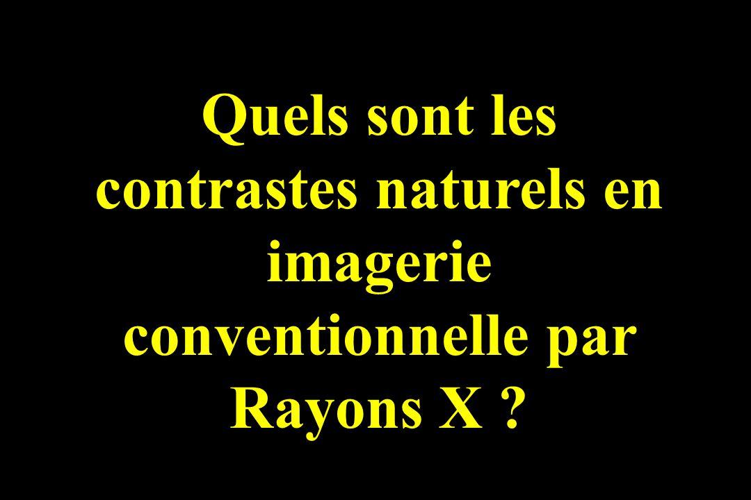 Quels sont les contrastes naturels en imagerie conventionnelle par Rayons X