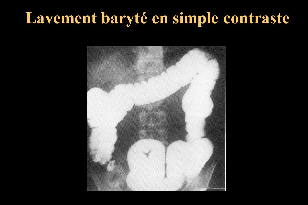 Lavement baryté en simple contraste