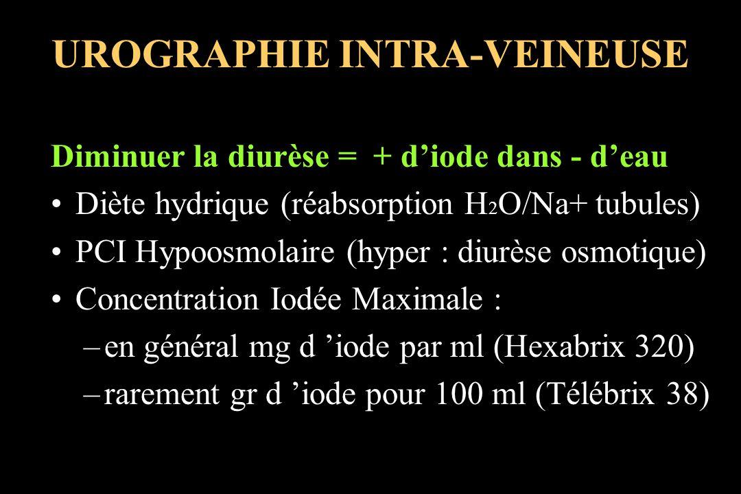 UROGRAPHIE INTRA-VEINEUSE