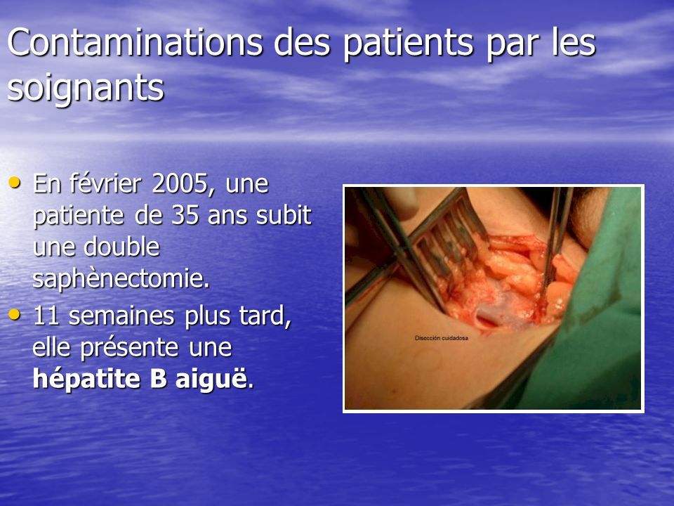 Contaminations des patients par les soignants