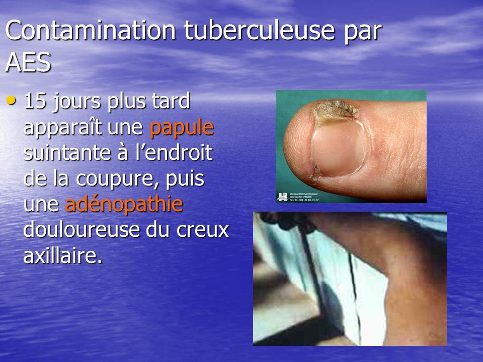 Contamination tuberculeuse par AES