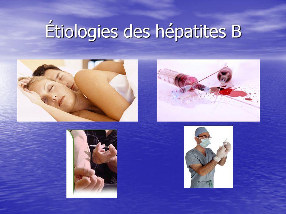 Étiologies des hépatites B