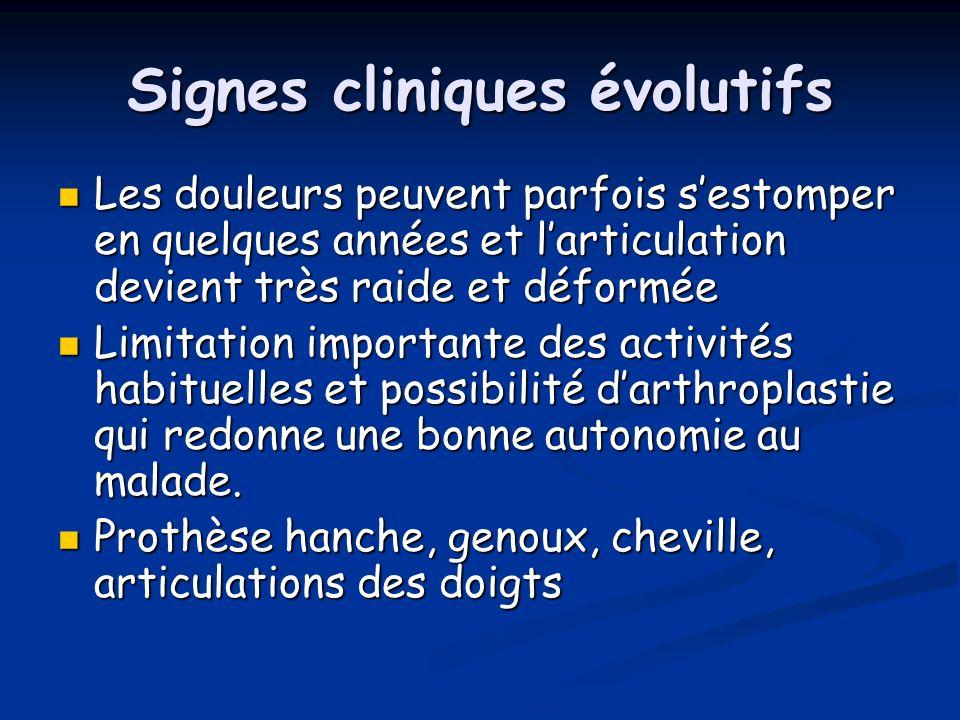 Signes cliniques évolutifs
