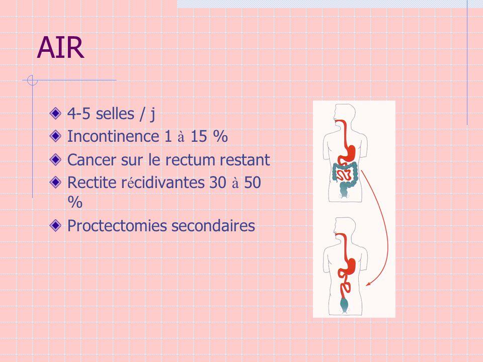 AIR 4-5 selles / j Incontinence 1 à 15 % Cancer sur le rectum restant
