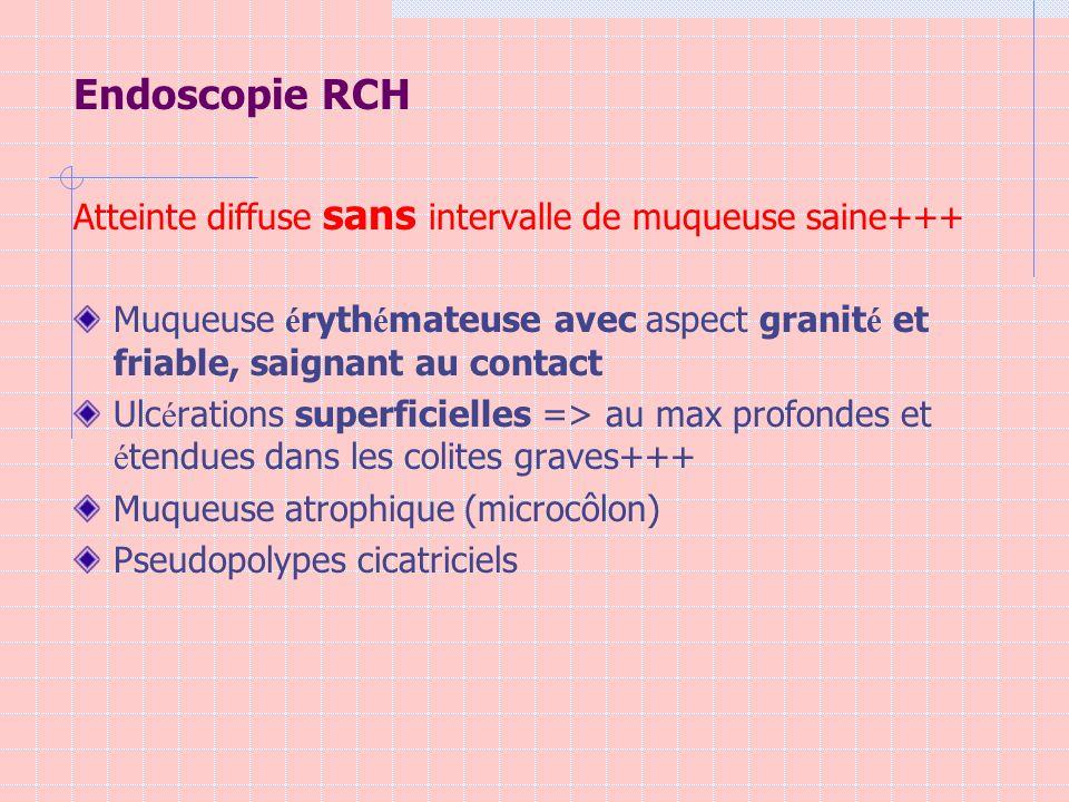 Endoscopie RCH Atteinte diffuse sans intervalle de muqueuse saine+++