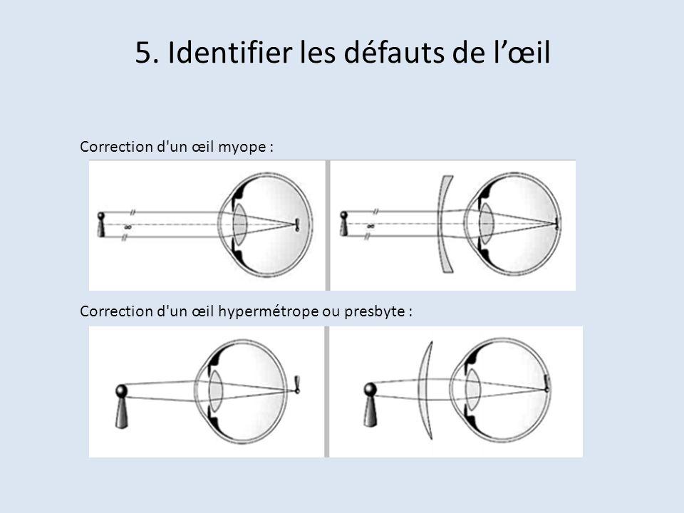 5. Identifier les défauts de l'œil
