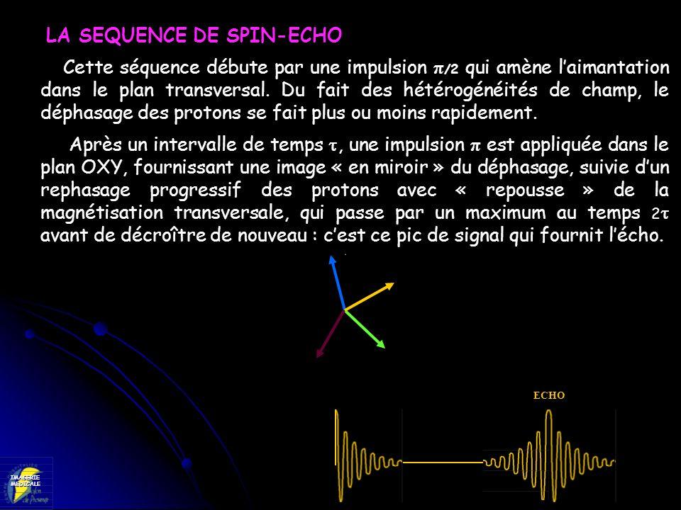 LA SEQUENCE DE SPIN-ECHO