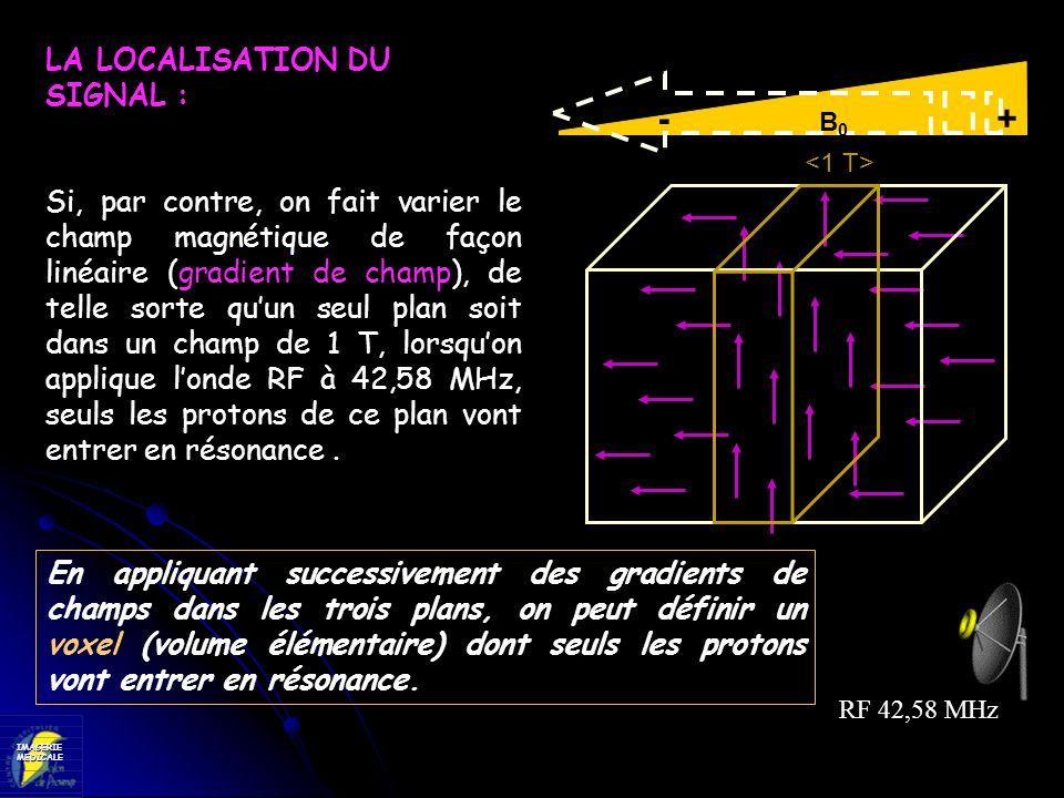 - B0 + LA LOCALISATION DU SIGNAL :