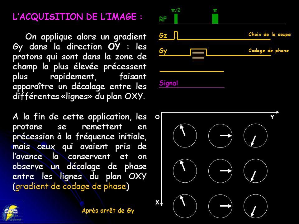 L'ACQUISITION DE L'IMAGE :