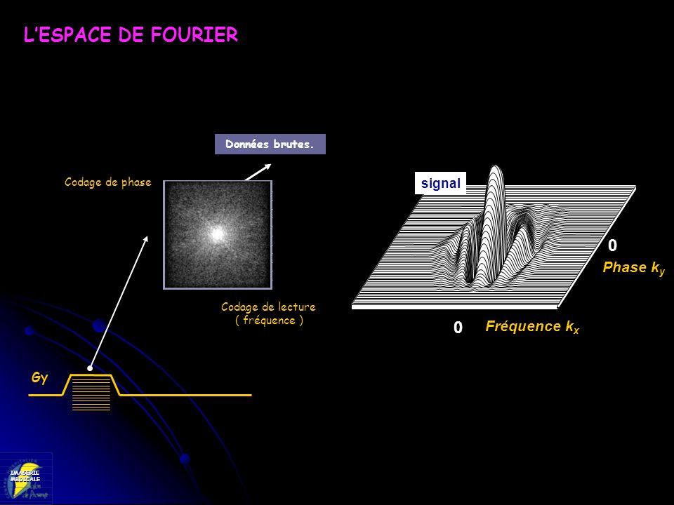 L'ESPACE DE FOURIER Phase ky Fréquence kx signal Gy Données brutes.