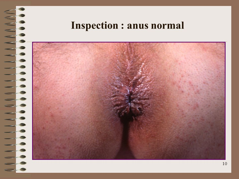 Inspection : anus normal