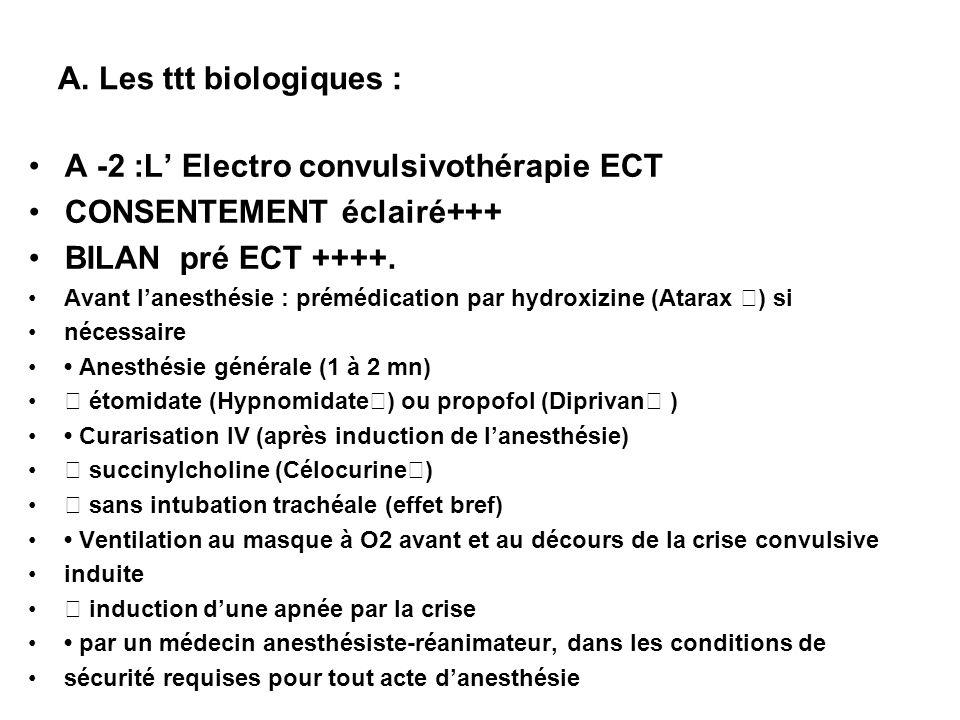 A -2 :L' Electro convulsivothérapie ECT CONSENTEMENT éclairé+++