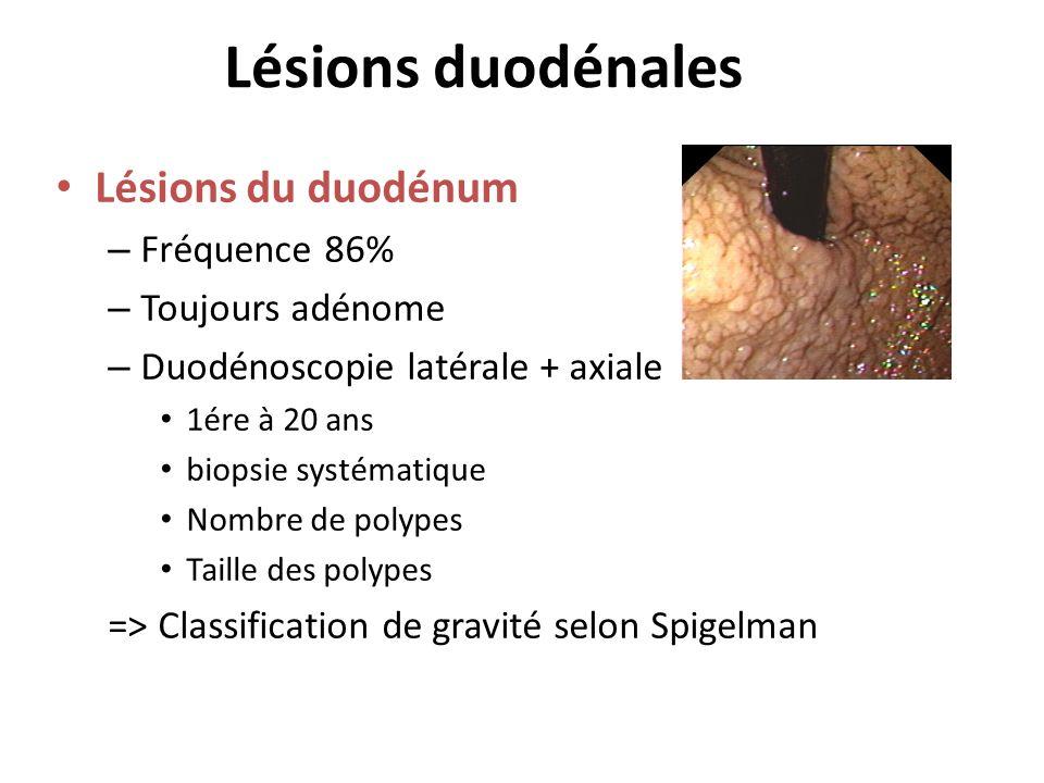 Lésions duodénales Lésions du duodénum Fréquence 86% Toujours adénome