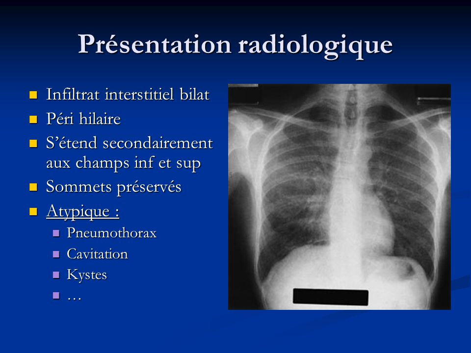 Présentation radiologique