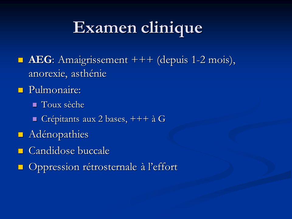 Examen clinique AEG: Amaigrissement +++ (depuis 1-2 mois), anorexie, asthénie. Pulmonaire: Toux sèche.