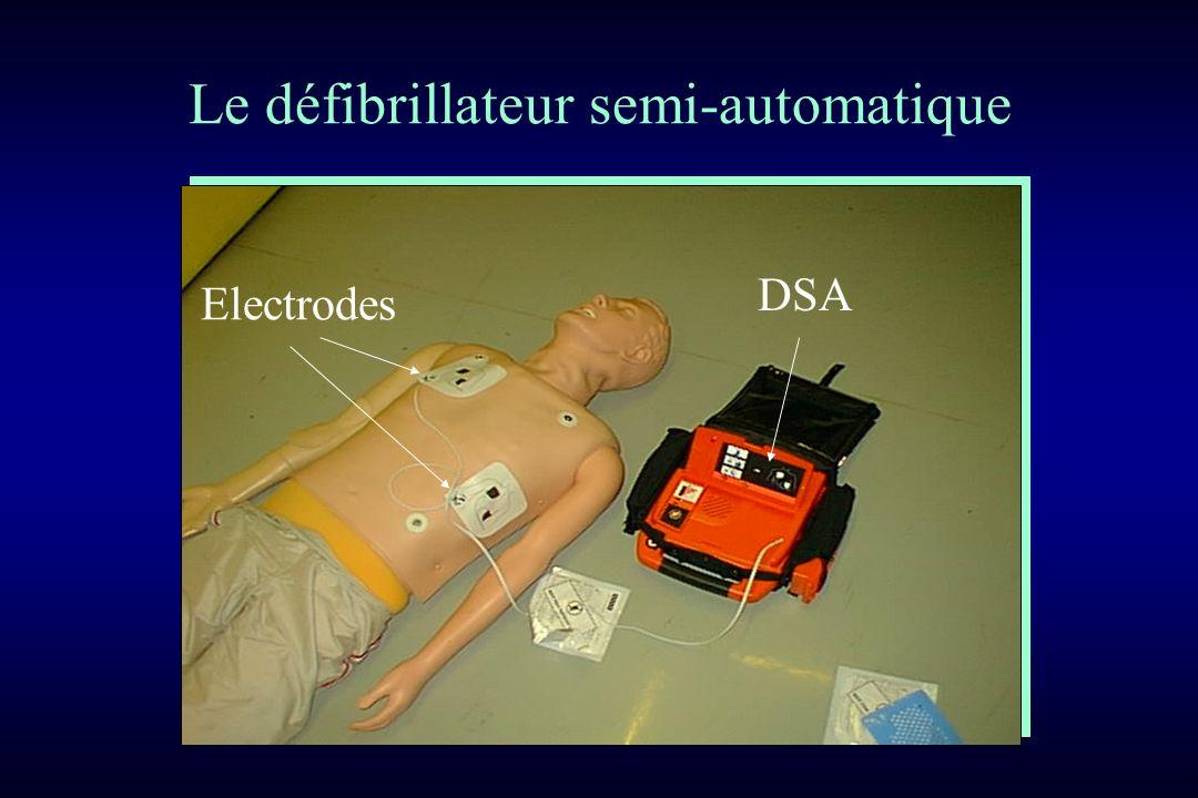 Le défibrillateur semi-automatique