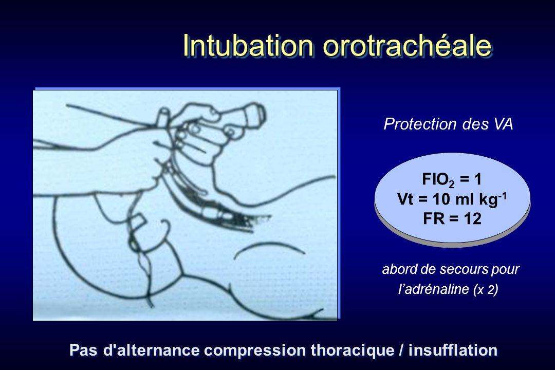 Pas d alternance compression thoracique / insufflation