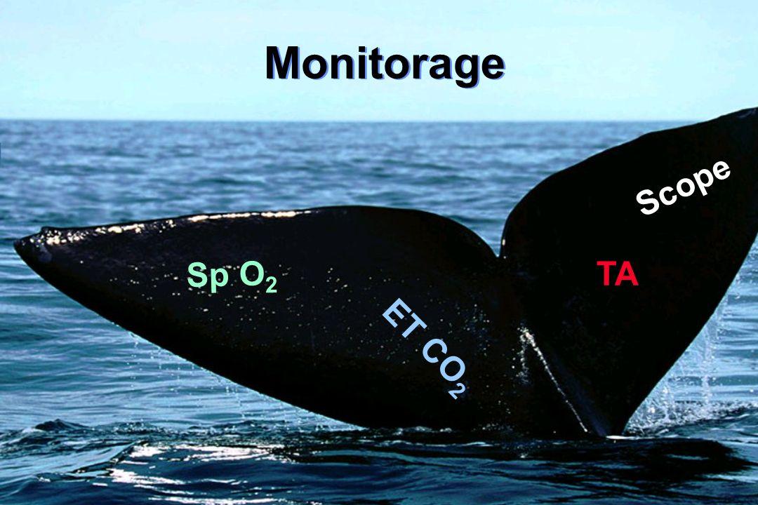 Monitorage Scope Sp O2 TA ET CO2